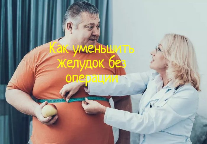 Уменьшить желудок без операции