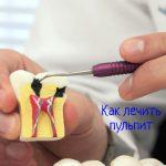 Пульпит - как лечить воспаление мягких тканей зуба