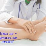 Отеки ног – почему скапливается жидкость